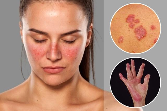 Dia Internacional de Atenção à Pessoa com Lúpus: doença atinge cerca de 200 mil brasileiros, segundo MS
