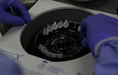 diagnostico laboratorial de casos suspeitos do novo coronavirus 400x255 - Sobem para 11 os casos suspeitos de infecção pelo novo coronavírus
