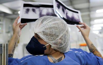 radiografia de torax coronaviruscovid 19 hospital sao paulo1205200325 400x255 - Secretaria diz que contágio por assintomático é baixo, mas existe