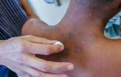 Hanseniase 400x255 - Brasil tem quase 30 mil novos casos de hanseníase por ano
