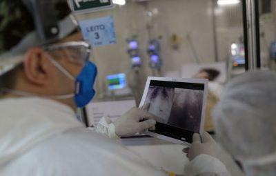 radiografia de torax coronaviruscovid 19 hospital sao paulo1205200326 400x255 - Fiocruz: síndrome respiratória grave tende a aumentar em oito estados